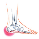 Heel Pain Syndrome